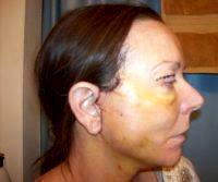 Hematoma After Rhytidectomy (4)