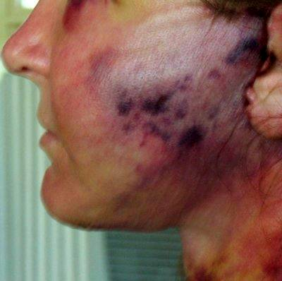 Facial bruising plastic surgery 7