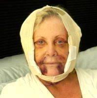 Hematoma Following Facelift Surgery