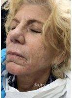 How Many Botox Injections You Are Receiving