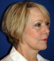 How Your Lower Facelift Will Look In Five Years