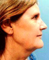 Improve The Loose Skin Of The Neck