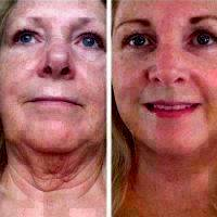 Lifestyle Lift Procedure Before And After
