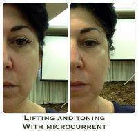 Lifting And Toning With Microcurrent