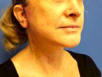 Lifting Sagging Skin Tissue From The Lower Part Of The Face