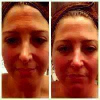 Liquid Facelift California Before And After