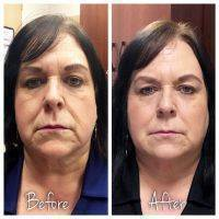 Liquid Facelift Florida Before And After