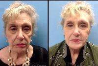 Liquid Facelift Virginia Before And After