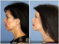 Lower Face And Neck Lift Before And After Photos (10)