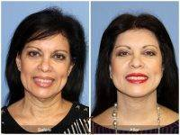 Lower Face And Neck Lift Before And After Photos (8)