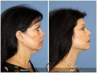 Lower Face And Neck Lift Before And After Photos (9)
