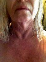 Lower Face And Neck Lift Is An Operation To Improve The Loose Skin Of The Neck, The Jaw Line, The Deeper Wrinkle Lines