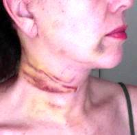 Lower Face And Neck Lift May Be Part Of A Number Of Procedures
