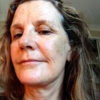Lower Face And Neck Lift Pictures (11)