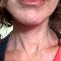 Lower Face And Neck Lift Pictures (13)