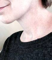 Lower Face And Neck Lift Pictures (15)
