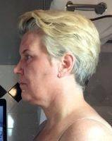 Lower Face And Neck Lift Pictures (16)