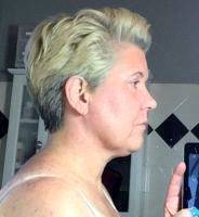 Lower Face And Neck Lift Pictures (17)