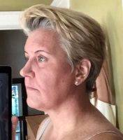 Lower Face And Neck Lift Pictures (18)