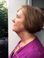 Lower Face And Neck Lift Pictures (19)