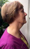 Lower Face And Neck Lift Pictures (20)