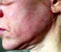 Lower Face And Neck Lift Pictures (23)