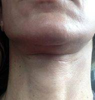 Lower Face And Neck Lift Pictures (24)