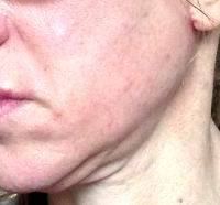 Lower Face And Neck Lift Pictures (26)