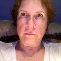 Lower Face And Neck Lift Pictures (28)