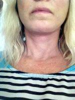 Lower Face And Neck Lift Pictures (3)