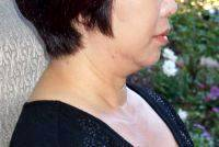 Lower Face And Neck Lift Pictures (32)