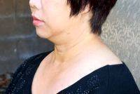 Lower Face And Neck Lift Pictures (33)