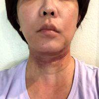 Lower Face And Neck Lift Pictures (34)