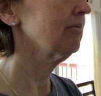 Lower Face And Neck Lift Pictures (37)