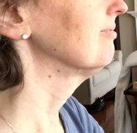 Lower Face And Neck Lift Pictures (38)