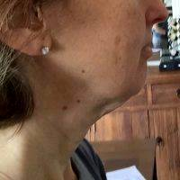 Lower Face And Neck Lift Pictures (39)