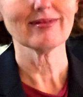 Lower Face And Neck Lift Pictures (40)