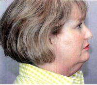 Lower Face And Neck Lift Pictures (8)