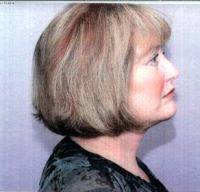 Lower Face And Neck Lift Pictures (9)