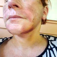 Lower Face And Neck Lift Recovery Photos (1)