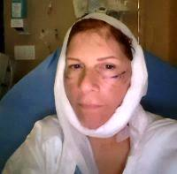 Lower Face And Neck Lift Recovery Photos (2)