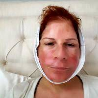 Lower Face And Neck Lift Recovery Photos (4)