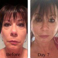 Lower Facelift Day 7