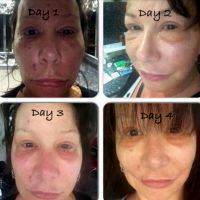 Lower Facelift Recovery Day By Day