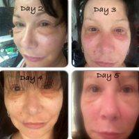 Lower Facelift Recovery Days 2-5