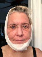 Lower Facelift Recovery Photos (10)