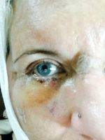 Lower Facelift Recovery Photos (11)