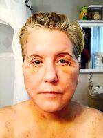 Lower Facelift Recovery Photos (12)