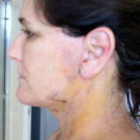 facelift recovery pictures