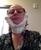 Lower Facelift Recovery Photos (29)
